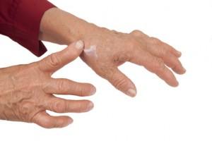Hand einer betagten Dame